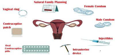 Based Methods of Family Planning