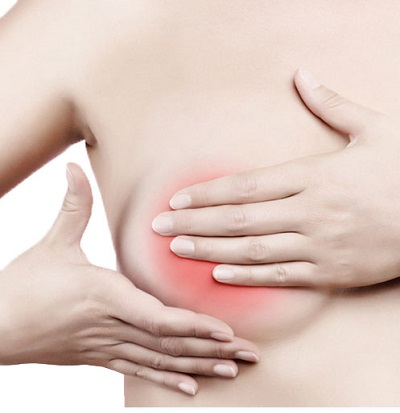 Benign Breast Problems and Conditions