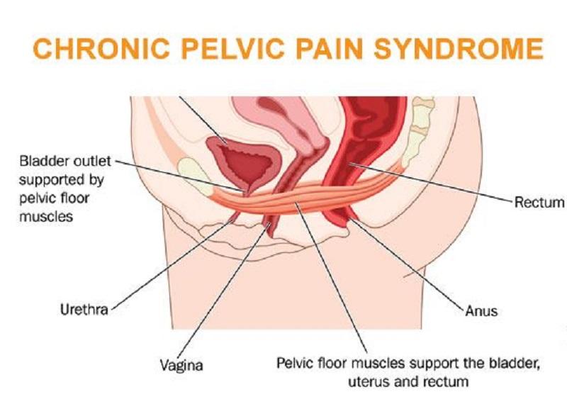 Chronic Pelvic Pain - FAQ 099