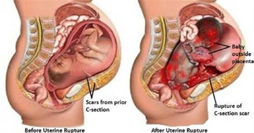 Vaginal Birth After Cesarean Delivery: Deciding on a Trial of Labor After Cesarean Delivery