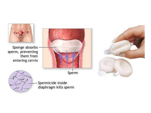 Diaphragm, Sponge, Cervical Cap, and Condom