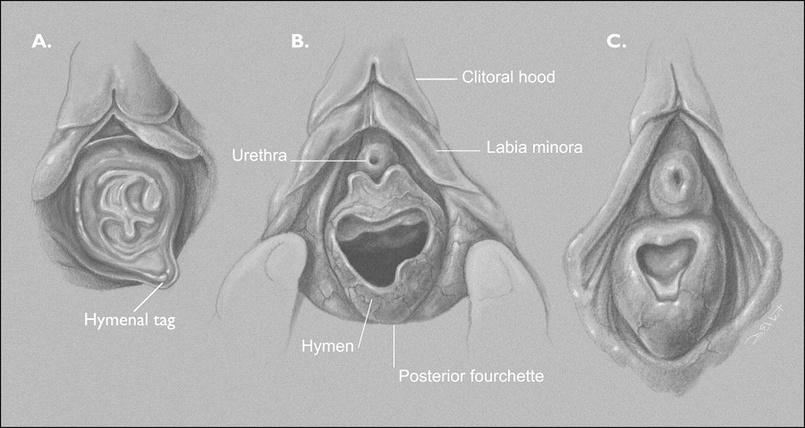 Disorders of the Vulva