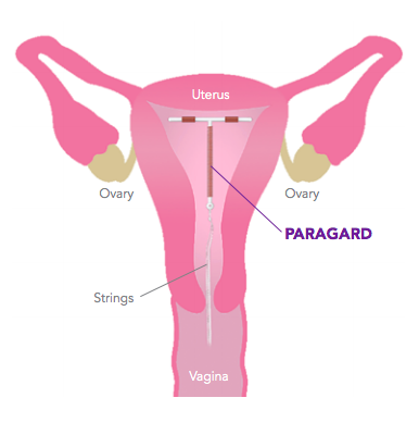 What is PARAGARD IUD?